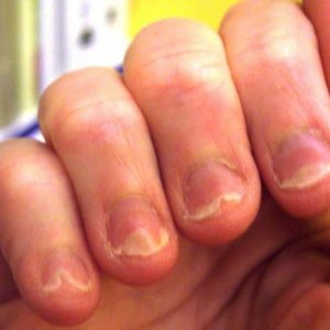 my nails damaged by severe diet changes, i started having vertical splits and onycholysis