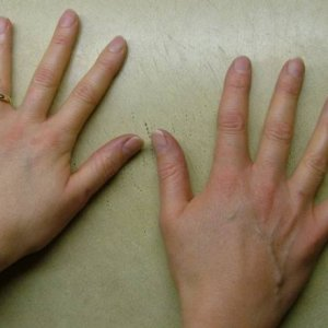 Before...  Piccies of clients hands before scuplting