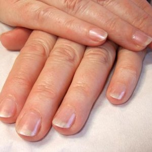 Nail Biters Nails After Enhancements  Client going in for operation but she was a nail biter.  I hope she gets on okay as they are looking 110% better than they were.