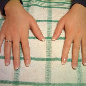 Plastic tips with Gel overlays