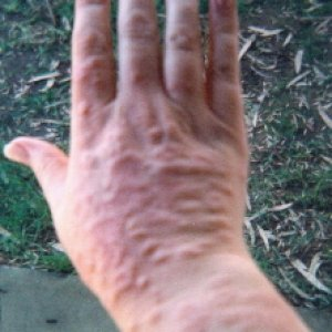 Allergic Contact Dermatitis  I suffered with this for 13 years before I found solutions to prevent it.