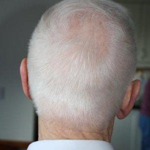 After Scissor over comb