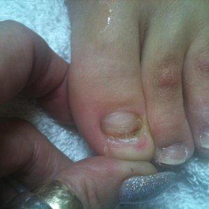 Damaged Toe Nail