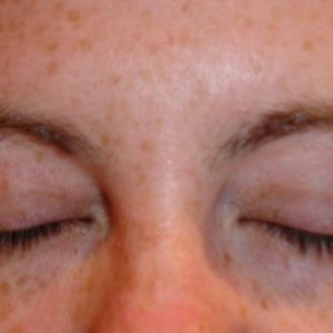 BROWS 5 BEFORE - FRONT