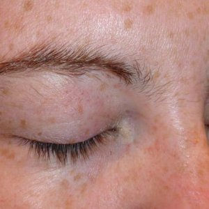 BROWS 5 BEFORE - RIGHT SIDE