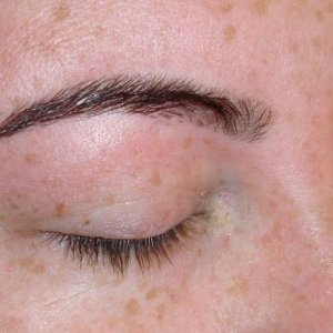 BROWS 5 AFTER - RIGHT SIDE