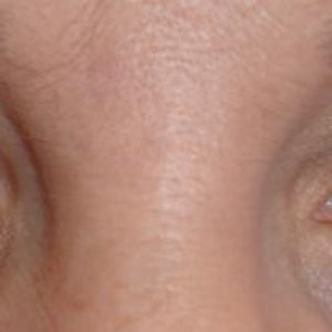 LVL LASHES BEFORE - FRONT