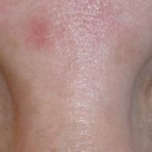 LVL LASHES AFTER - FRONT