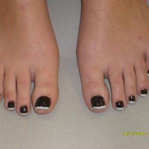 French pedicure assessment after