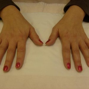 Red nail polish assessment after