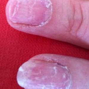 Gelac removal - damage to own natural nails.