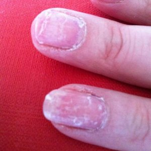 Gelac removal - damage to my natural nail - peeling, flaking and cracking.