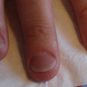Male nail biter after L&P custom blend
