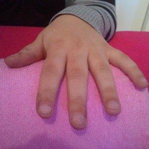 my cousins nails before - nail biter