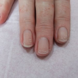 This is my regular shellac client who has had to take a break from shellac from time to time, this was taken after a 6 week break. Nails still appear to be peeling quite far down nail. Any Advice welcome?
