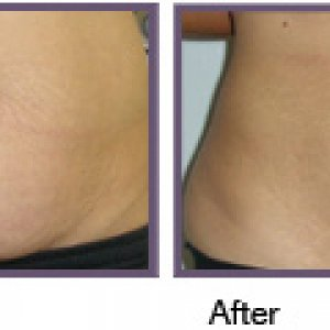 ionithermie before and after tummy