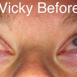 Vicky mysara before