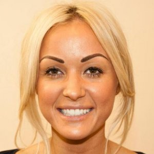 gill after 3D hairstroke brow treatment