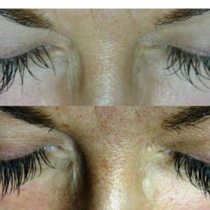 client had lashes applied elsewhere. They were far too long.  I did her infills and filled with shorter lashes to allow her to keep the length but lose the Spiders Legs! Starting from the inner corner I have used C0.20. 10, 11, 12, 13, 14, 13, 12,