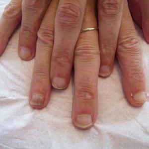 Mary - small nail beds