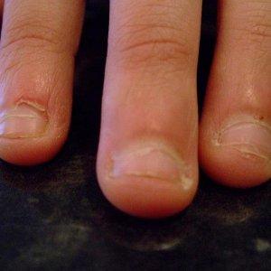 nail biter b4