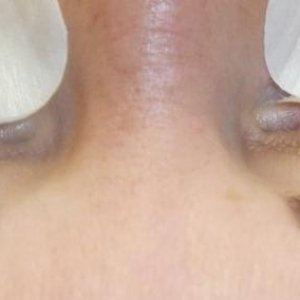 Client booked in for infills. These lashes were done at a top spa and I had to remove them!