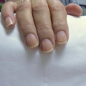 Mum Before. Had to cut down her lovely only used to Shellac nails