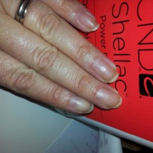 my nails after using the new shellac remover and NO solar oil or any moisturiser!