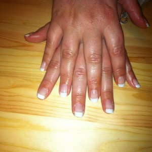 Quite pleased with how this ladies nails have grown in 3 treatments