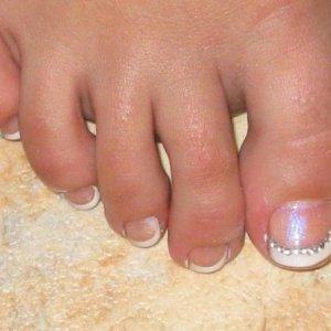 Myonies Toes
