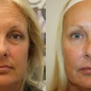 Botox Before And After - Perfect Botox Co