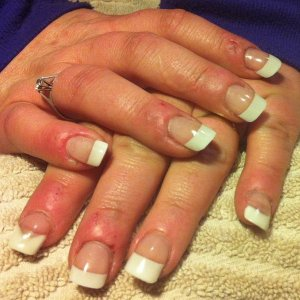 White tips, with a couple sculptured on bitten nails