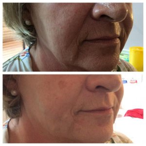 Before & after PDO thread lift