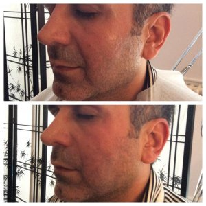 Before & after PDO threads to naso labial folds