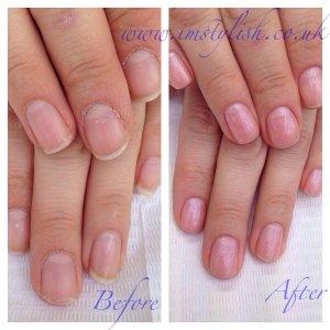 Rescue manicure