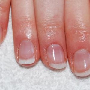 This is my friend's nails after having her enhancements removed.  She used to bite her nails.  Dead proud of these.  Hope they last!!